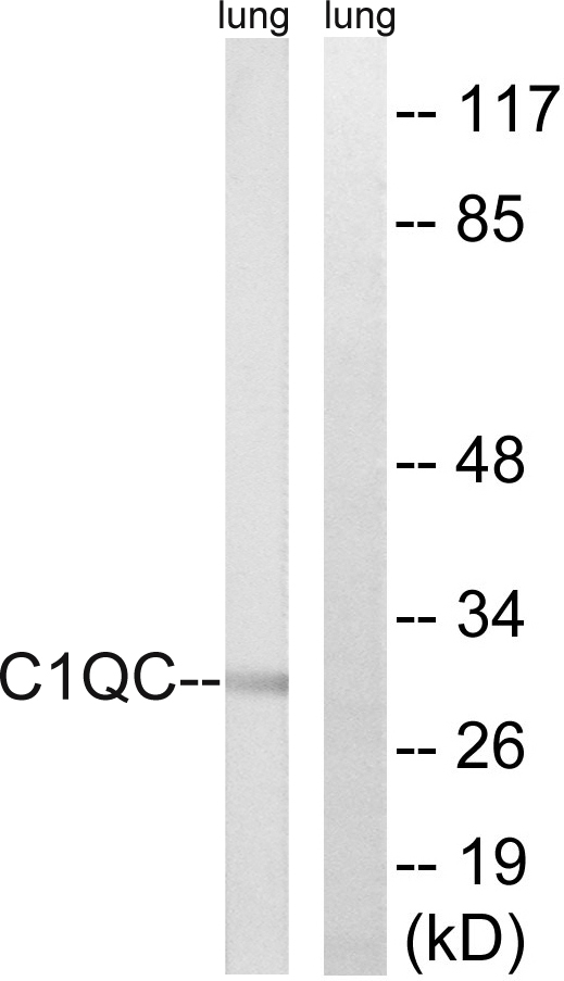C1QC Antibody (OAAF03517) in Rat lung cells using Western Blot