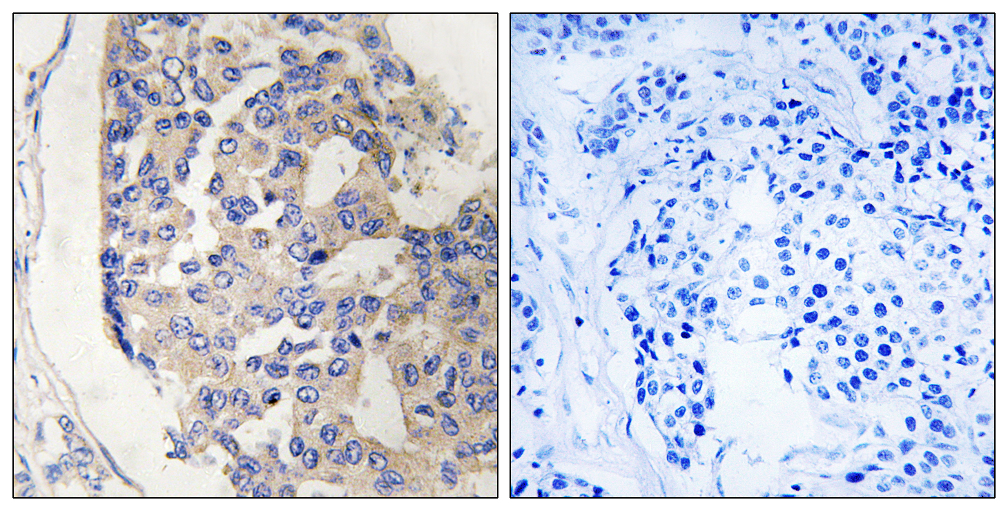 C1S Antibody (OAAF03519) in Human breast carcinoma cells using Immunohistochemistry