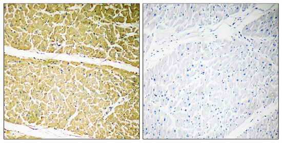 C6 Antibody (OAAF03521) in Human heart cells using Immunohistochemistry