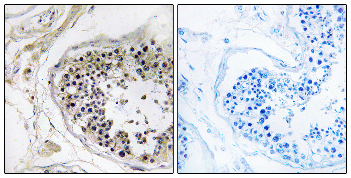 CST8 Antibody (OAAF03539) in Human testis cells using Immunohistochemistry