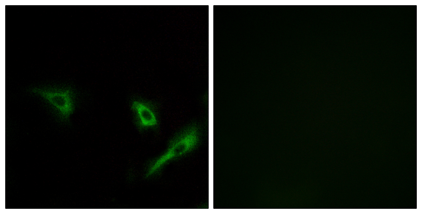 ATG4A Antibody (OAAF03545) in A549 cells using Immunofluorescence