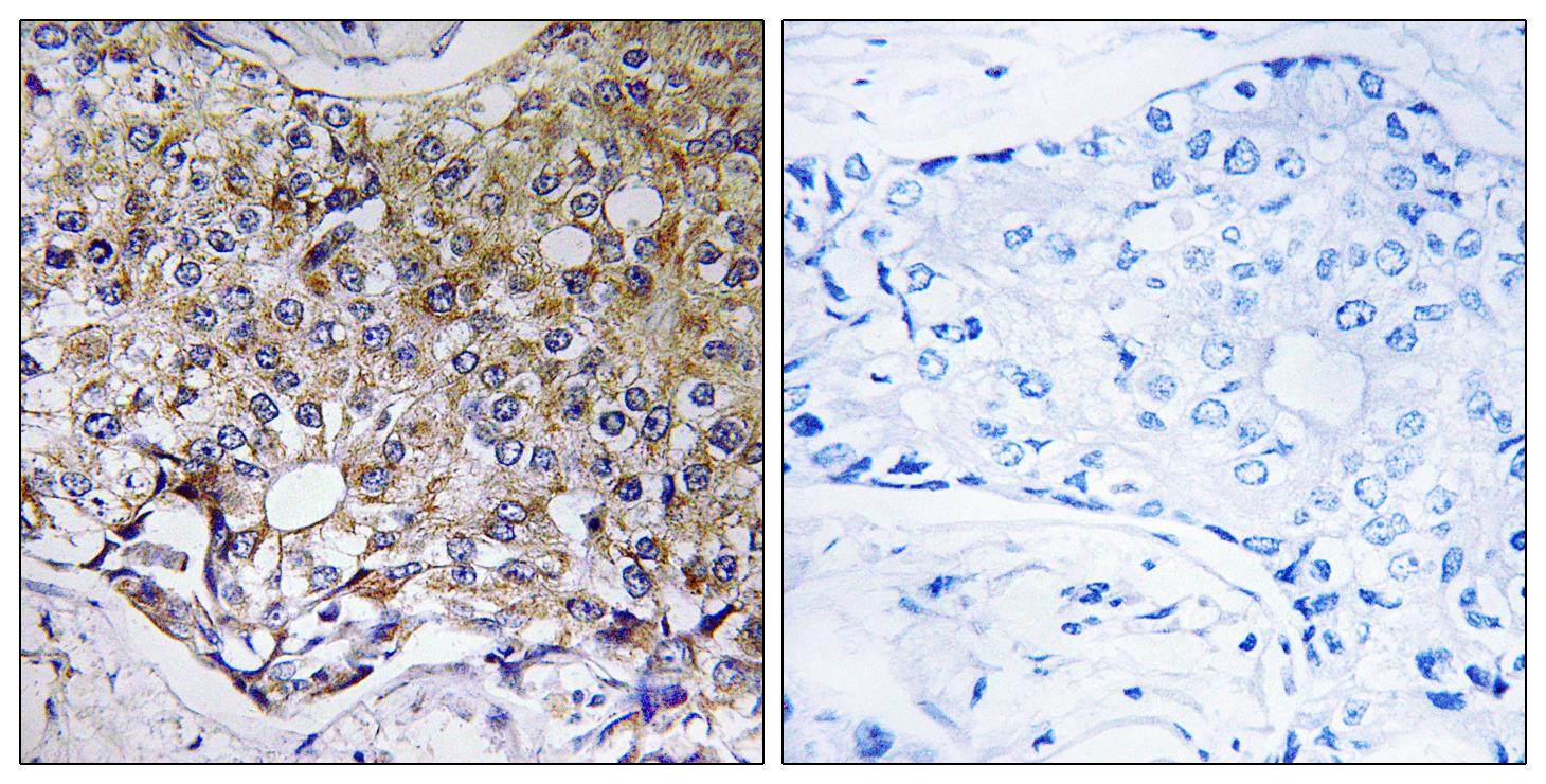 ATG4A Antibody (OAAF03545) in Human breast carcinoma cells using Immunohistochemistry