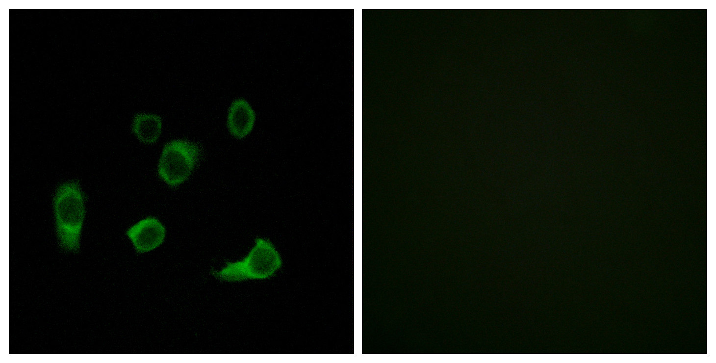 ATG4C Antibody (OAAF03546) in HuvEc cells using Immunofluorescence