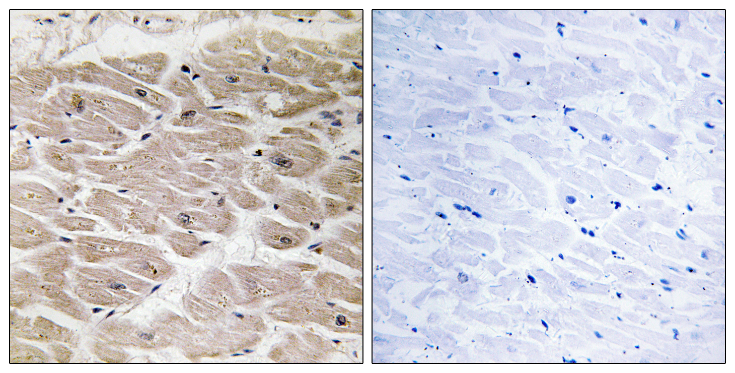 AGBL2 Antibody (OAAF03551) in Human heart cells using Immunohistochemistry