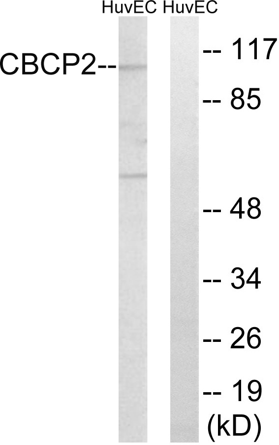 AGBL2 Antibody (OAAF03551) in HuvEc cells using Western Blot