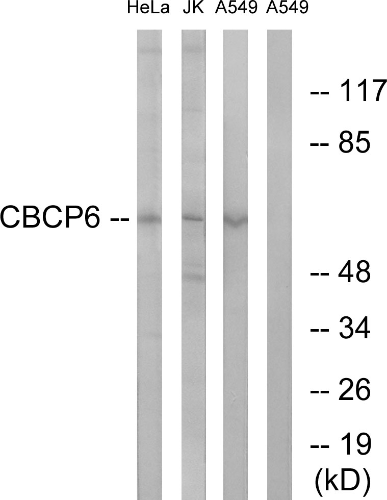 AGBL4 Antibody (OAAF03553) in HeLa, Jurkat, A549 cells using Western Blot
