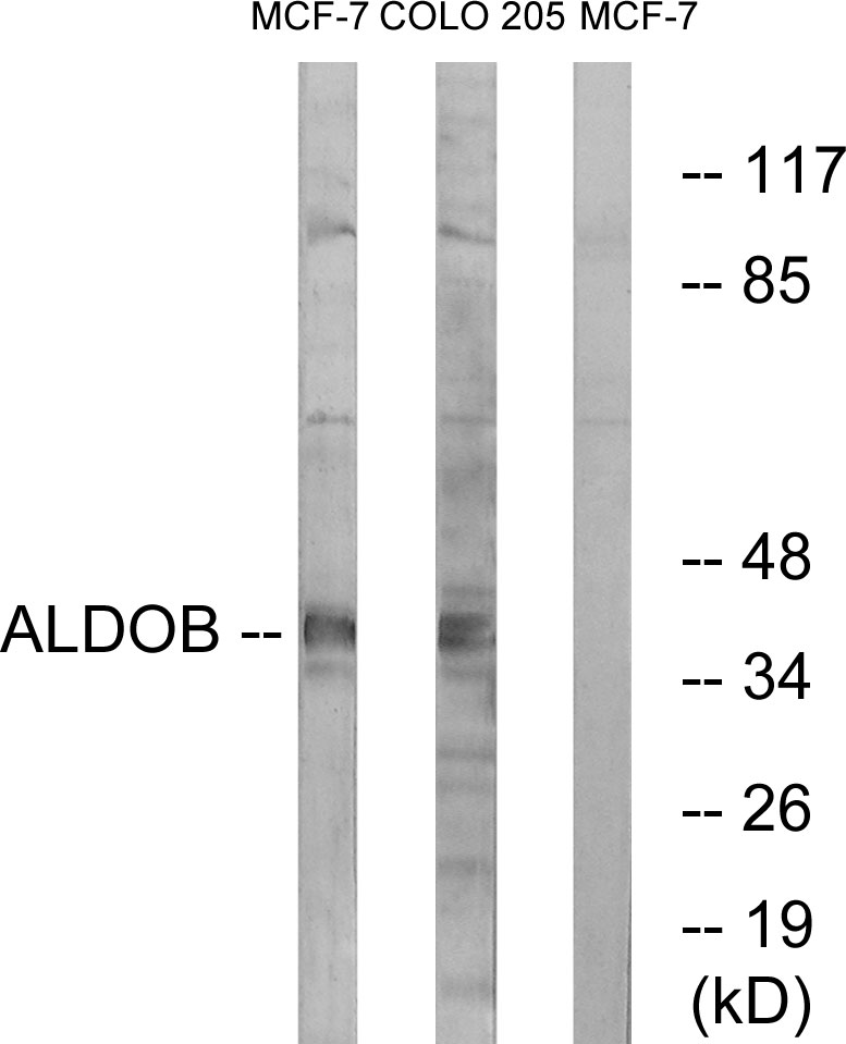ALDOB Antibody (OAAF03677) in MCF-7, HUVEC cells using Western Blot