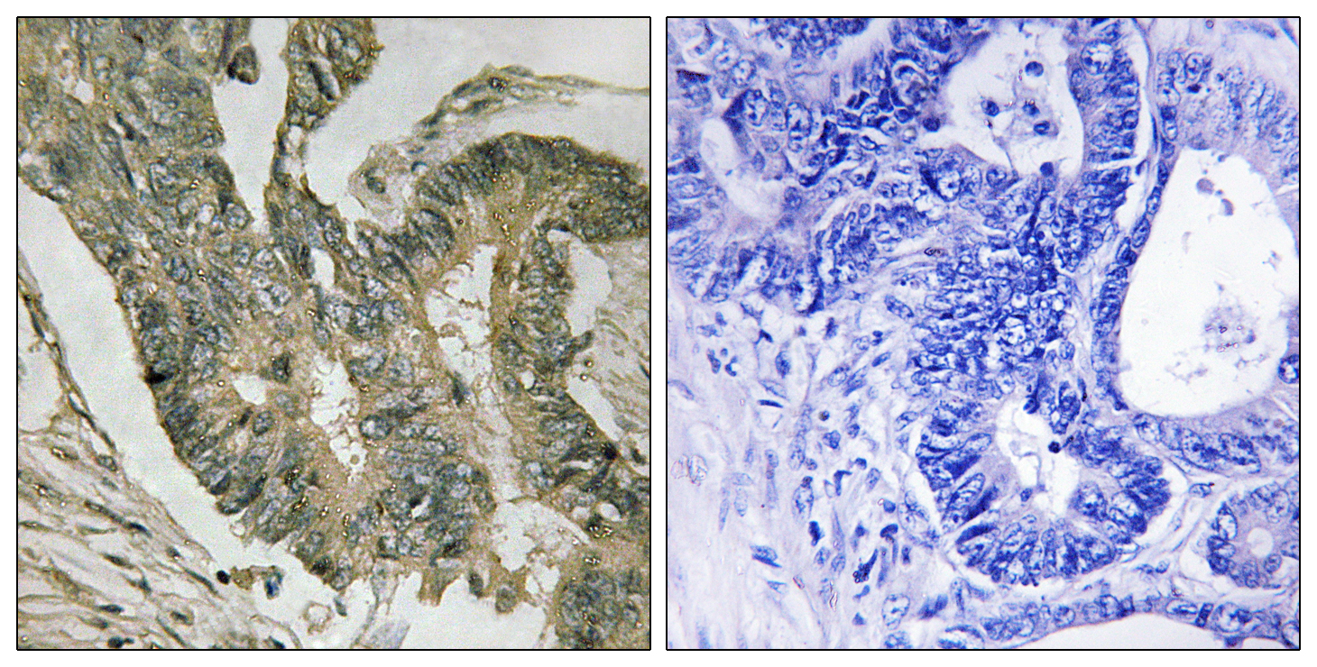 ALDOC Antibody (OAAF03678) in Human colon carcinoma cells using Immunohistochemistry
