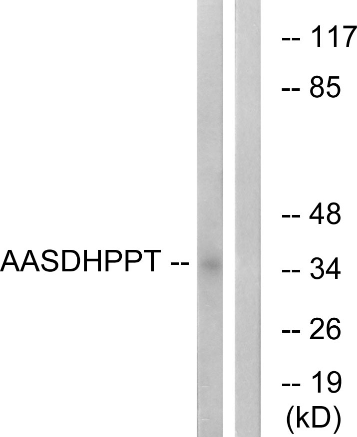 AASDHPPT Antibody (OAAF03784) in COLO cells using Western Blot