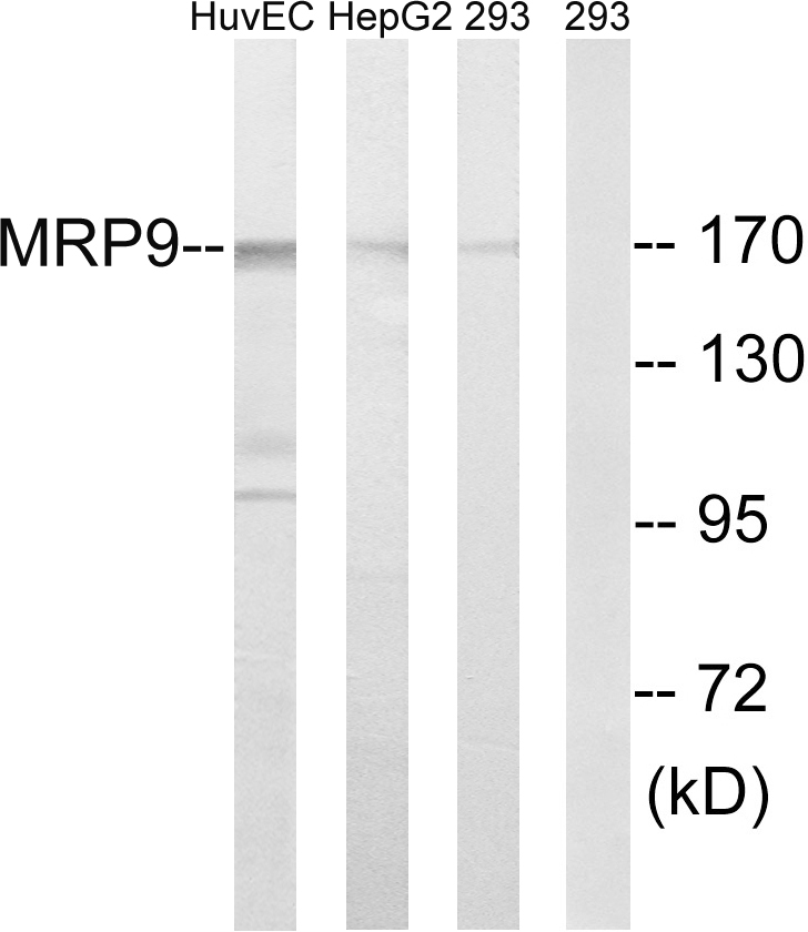 ABCC12 Antibody (OAAF03852) in HUVEC, 293, HepG2 cells using Western Blot