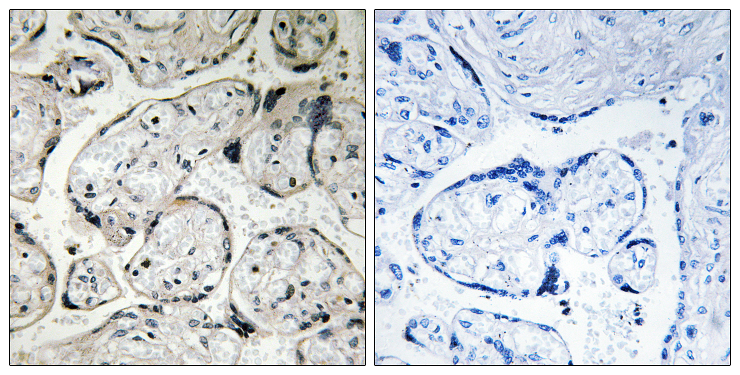 CYB5R3 Antibody (OAAF03890) in Human placenta cells using Immunohistochemistry