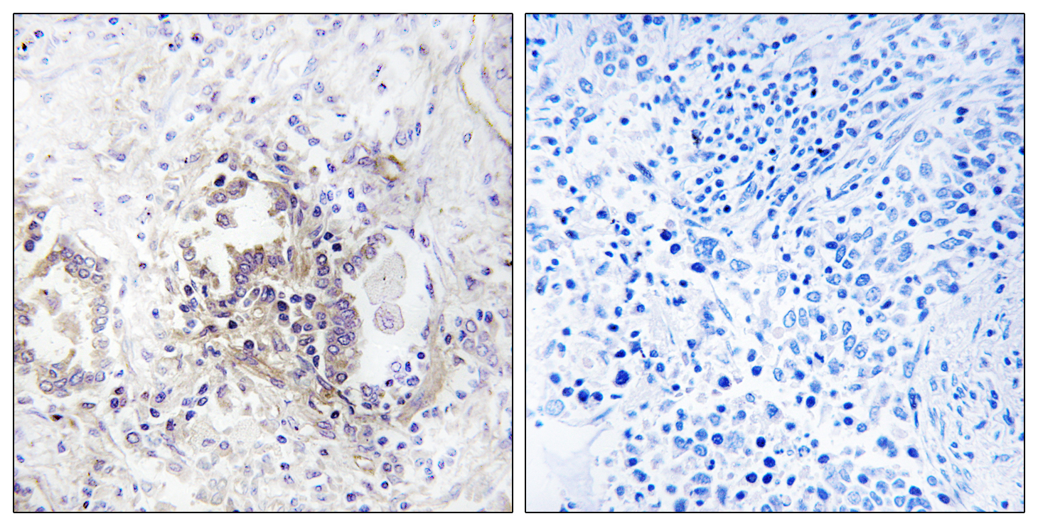 CHML Antibody (OAAF04109) in Human lung carcinoma cells using Immunohistochemistry