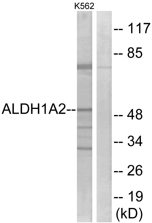 ALDH1A2 Antibody (OAAF04176) in K562 cells using Western Blot