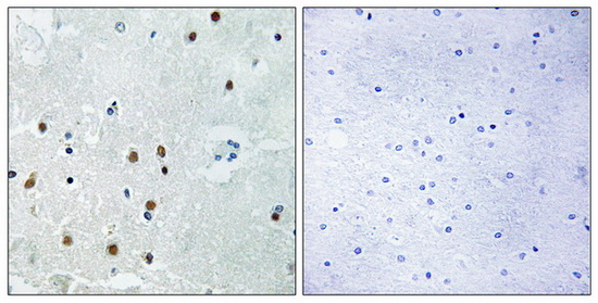 ARHGAP18 Antibody (OAAF04183) in Human brain cells using Immunohistochemistry