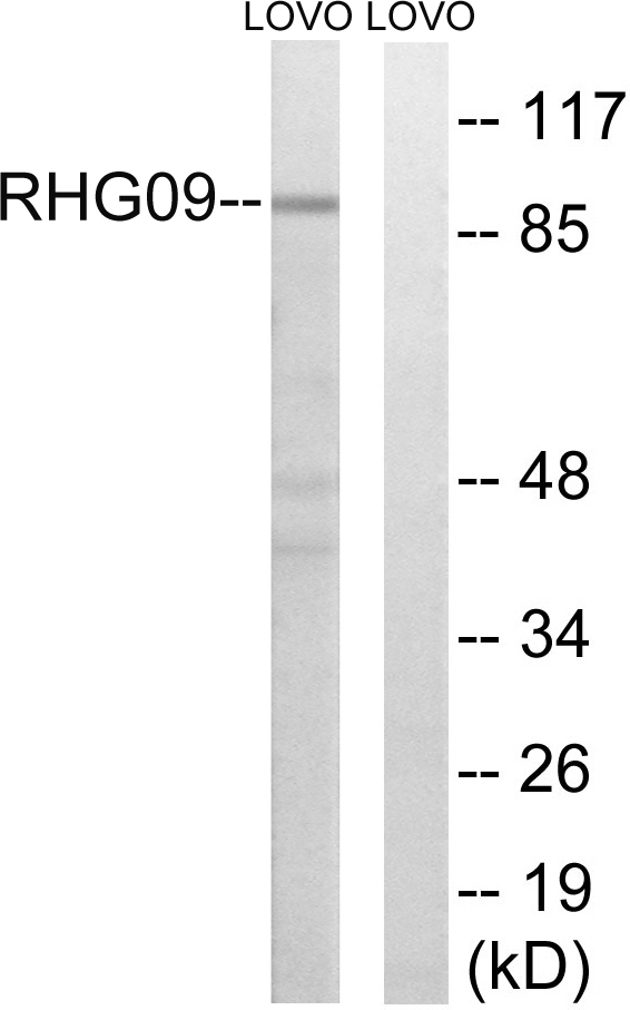 ARHGAP9 Antibody (OAAF04185) in LOVO cells using Western Blot