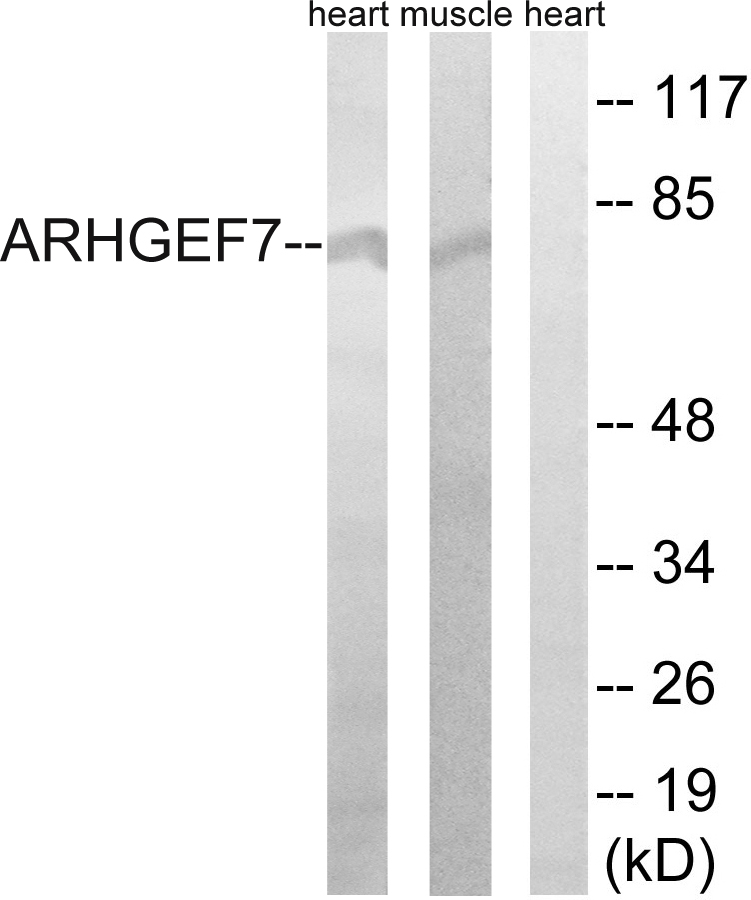 ARHGEF7 Antibody (OAAF04194) in Rat muscle, Rat heart cells using Western Blot