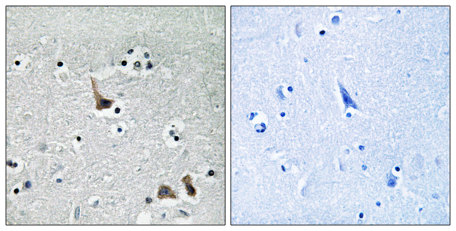 ATP6V1H Antibody (OAAF04437) in Human brain cells using Immunohistochemistry