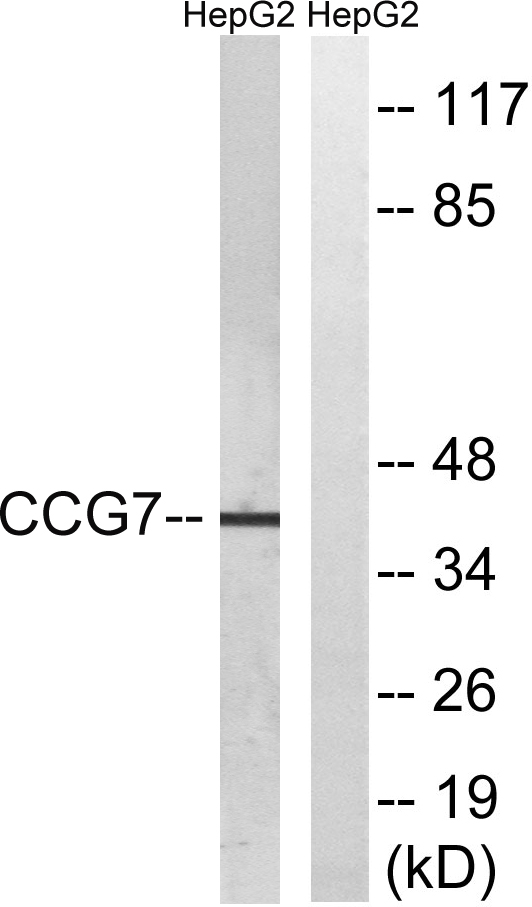 CACNG7 Antibody (OAAF04449) in HepG2 cells using Western Blot