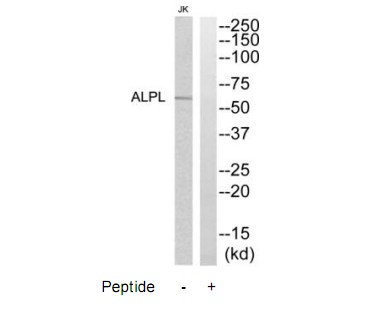 ALPL Antibody (OAAF04581) in Jurkat cells using Western Blot