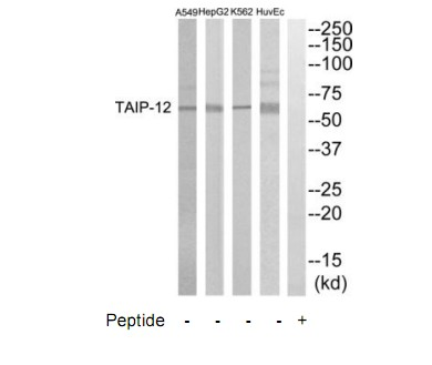 CSRNP2 Antibody (OAAF04585) in HuvEC, K562, HepG2, A549 cells using Western Blot