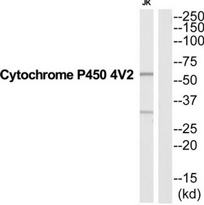 CYP4V2 Antibody (OAAF04604) in Jurkat cells using Western Blot