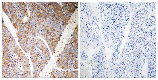 BAG3 Antibody (OAAF04631) in Human liver carcinoma cells using Immunohistochemistry