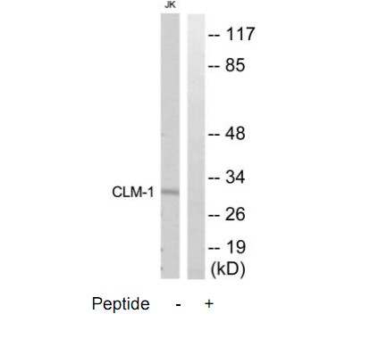 CD300LF Antibody (OAAF04683) in Jurkat cells using Western Blot