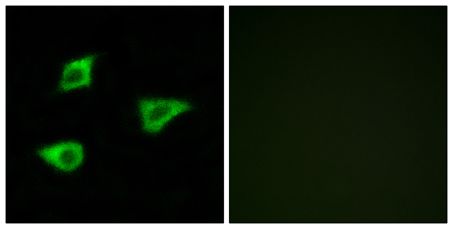 CHRM4 Antibody (OAAF04853) in LOVO cells using Immunofluorescence