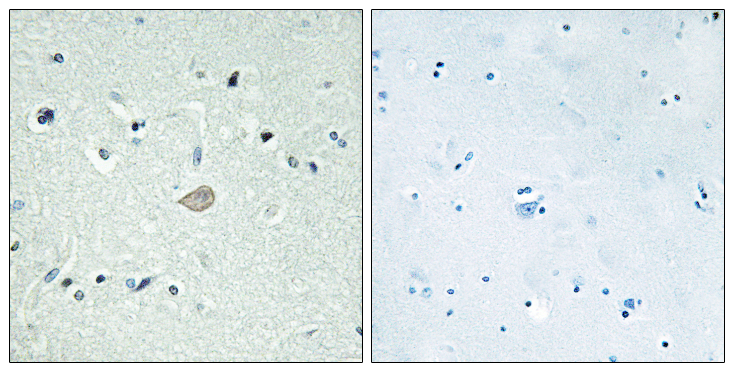 BAI3 Antibody (OAAF04859) in Human brain cells using Immunohistochemistry