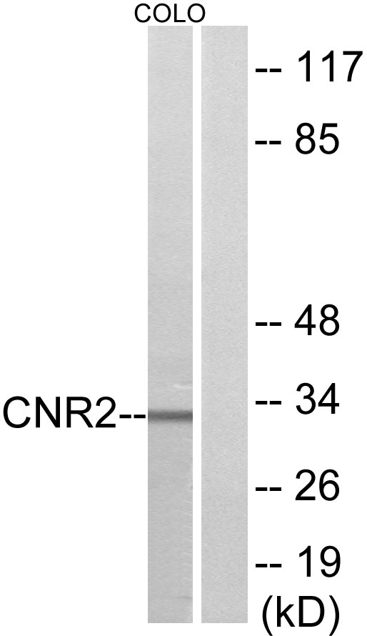 CNR2 Antibody (OAAF04869) in COLO205 cells using Western Blot