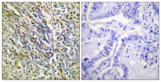ACAN (Cleaved-Asp369) Antibody (OAAF05311) in Human lung carcinoma cells using Immunohistochemistry