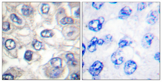 BAD (Cleaved-Asp71) Antibody (OAAF05312) in Human breast carcinoma cells using Immunohistochemistry