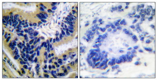 CASP3 (Cleaved-Asp175) Antibody (OAAF05313) in Human lung carcinoma cells using Immunohistochemistry