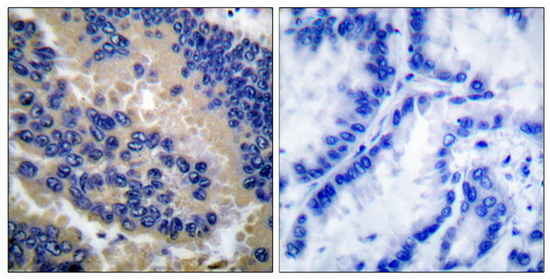 CASP3 (Cleaved-Asp175) Antibody (OAAF05314) in Human lung carcinoma cells using Immunohistochemistry