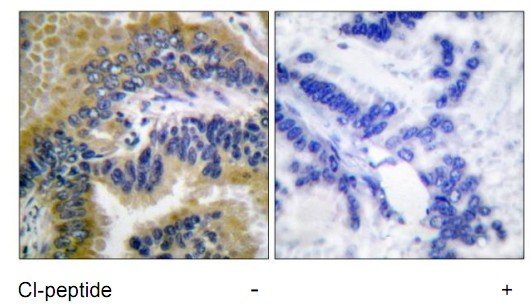 CASP3 (Cleaved-Asp175) Antibody (OAAF05315) in Human lung carcinoma cells using Immunohistochemistry