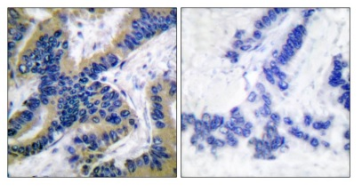 CASP6 (Cleaved-Asp179) Antibody (OAAF05316) in Human lung carcinoma cells using Immunohistochemistry