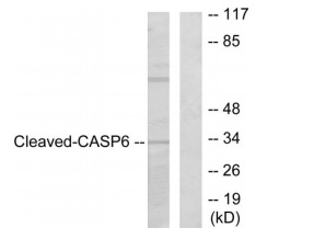 CASP6 (Cleaved-Asp179) Antibody (OAAF05316) in 293 cells using Western Blot
