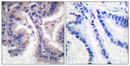 Casp6 (Cleaved-Asp162) Antibody (OAAF05317) in Human lung carcinoma cells using Immunohistochemistry