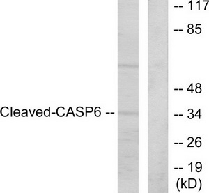 Casp6 (Cleaved-Asp162) Antibody (OAAF05317) in HeLa cells using Western Blot