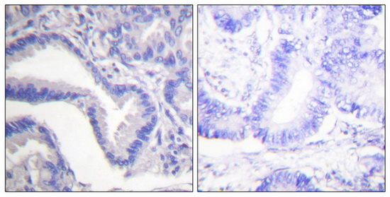 CASP7 (Cleaved-Asp198) Antibody (OAAF05318) in Human lung carcinoma cells using Immunohistochemistry
