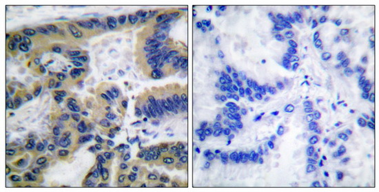 CASP7 (Cleaved-Asp198) Antibody (OAAF05319) in Human lung carcinoma cells using Immunohistochemistry