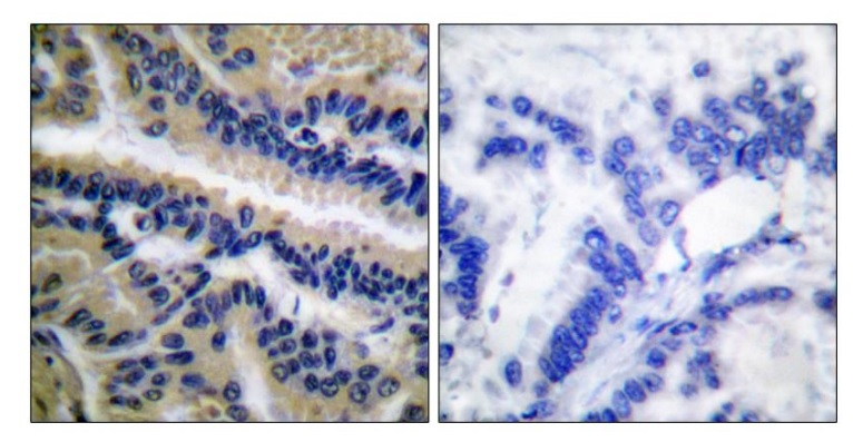 CASP9 (Cleaved-Asp353) Antibody (OAAF05320) in Human lung carcinoma cells using Immunohistochemistry