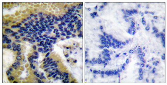 CASP9 (Cleaved-Asp330) Antibody (OAAF05322) in Human lung carcinoma cells using Immunohistochemistry