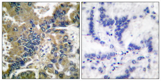 CASP1 (Cleaved-Asp210) Antibody (OAAF05324) in Human lung carcinoma cells using Immunohistochemistry
