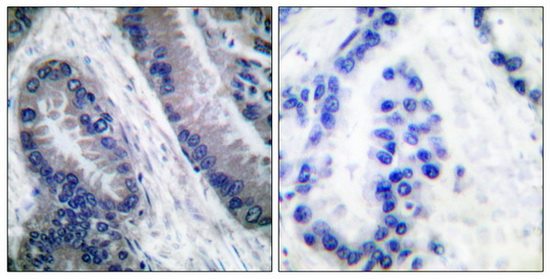 CASP1 (Cleaved-Asp210) Antibody (OAAF05325) in Human lung carcinoma cells using Immunohistochemistry