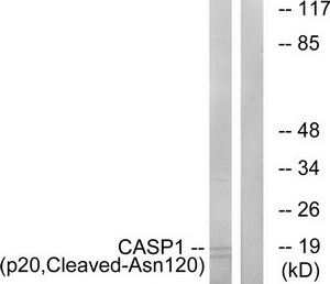 CASP1 (p20, Cleaved-Asn120) Antibody (OAAF05336) in Rat eye cells using Western Blot