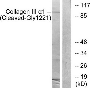 COL3A1 (Cleaved-Gly1221) Antibody (OAAF05362) in A549 cells using Western Blot