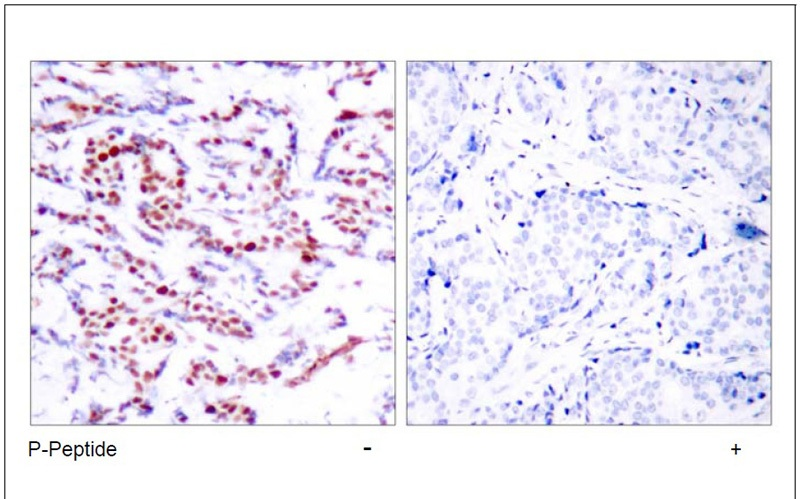 ATF-2 (Phospho-Ser112 or 94) Antibody (OAEC00033) in Human breast carcinoma cells using Immunohistochemistry