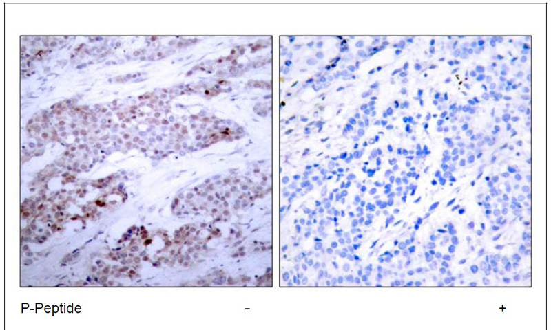 ATF4 (Phospho-Ser245) Antibody (OAEC00052) in Human breast carcinoma cells using Immunohistochemistry