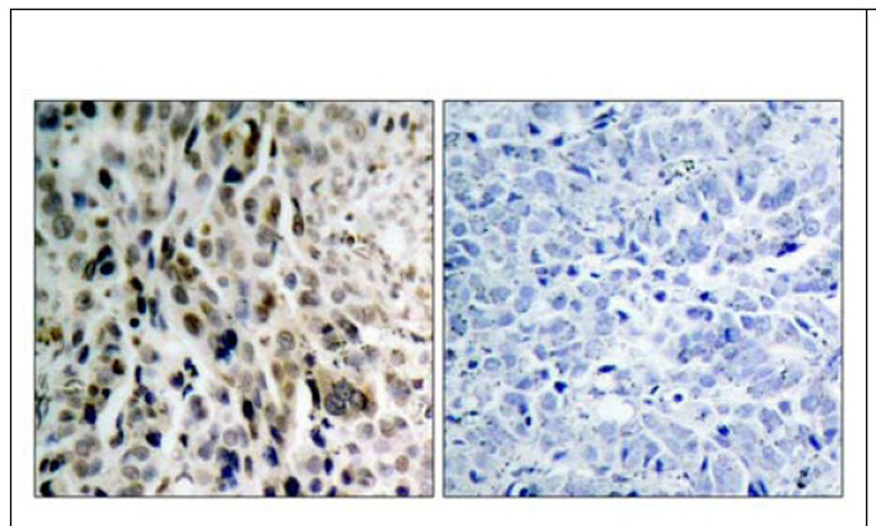 Chk2 (Phospho-Thr68) Antibody (OAEC00060) in Human lung carcinoma cells using Immunohistochemistry